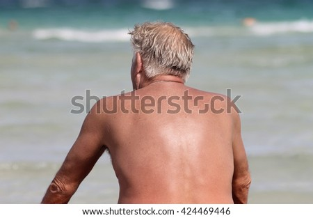 Alcudia, Majorca, Spain - 19th of August 2012. Sunburned senior man looking out to sea in this popular tourist resort. - stock photo