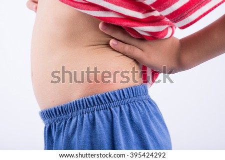 Allergy on kid back from mosquito - stock photo