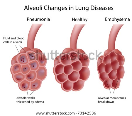 Alveoli in lung diseases - stock photo
