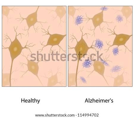Alzheimer's disease brain tissue with amyloid plaques compared to normal - stock photo