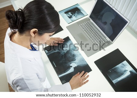 An Asian Chinese female medical doctor looking at x-rays of hip replacement and using laptop in a hospital