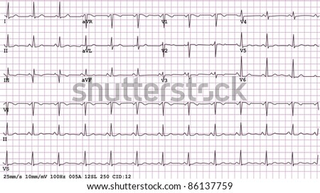 An example of a normal 12-lead sinus rhythm electrocardiogram - stock photo