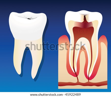 An illustration showing an unhealthy tooth with a cross section - stock photo