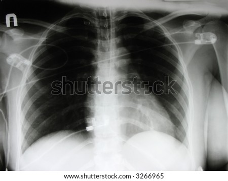 an x-ray of a chest, ribs and abdomen