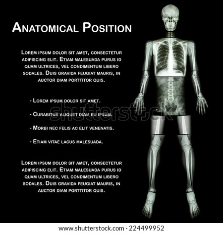 Anatomical Position. (X-ray whole body : head ,neck ,thorax ,heart ,lung ,rib ,shoulder ,scapula ,arm ,forearm ,elbow ,wrist ,hand ,digit ,abdomen ,hip ,pelvic ,leg ,thigh ,knee ,ankle ,heel ,foot ) - stock photo