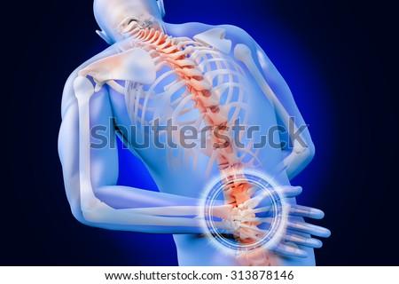anatomical vision back pain - stock photo