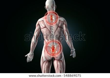 Anatomical Vision Back Pain 3 D Illustration Stock Illustration ...