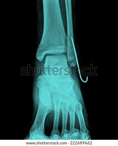 AP x-ray of injured ankle - stock photo