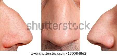 Aquiline nose - stock photo