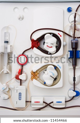 arlificial kidney (dialysis) medical device with rotating pumps - stock photo