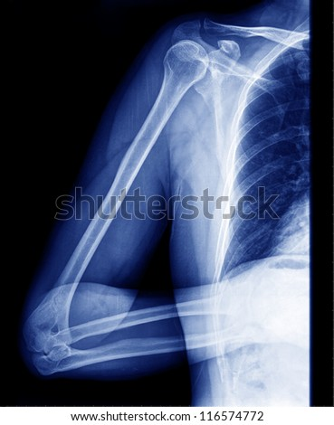 Arm  x-ray - stock photo