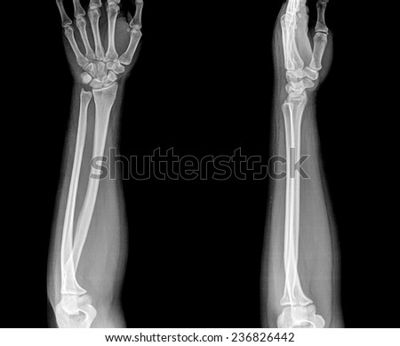 Arm x-ray , two position