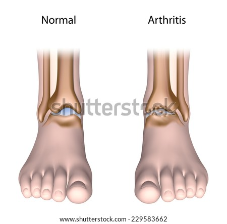 Arthritis of the ankle joint - stock photo