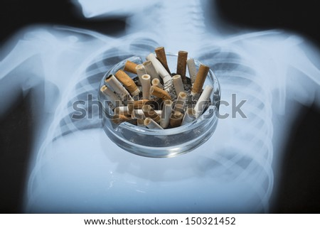 ashtray with x-ray picture  - stock photo