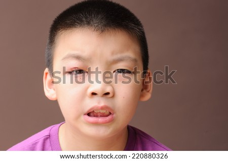 Asian boy after incision and drainage purulent from eyelid, Hordeolum, pained face - stock photo