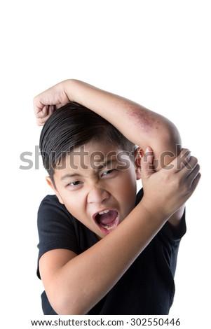 Asian boy injury on left arm - stock photo