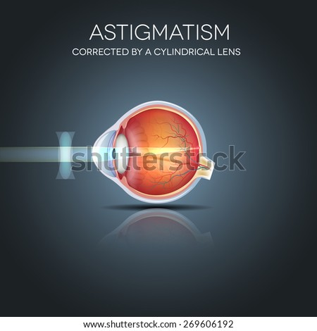 Astigmatism corrected by a cylindrical lens. Eyesight problem, blurred vision. Anatomy of the eye, cross section.  - stock photo