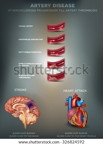 Diagram Showing Types Muscle Cells Illustration Stock. Door Hanger Signs. Integración Sensorial Signs. Propeller Signs. Uti Kidney Signs Of Stroke. Bright Neon Signs. Strokeawarenessmonth Signs. March Zodiac Signs. Concept Map Signs