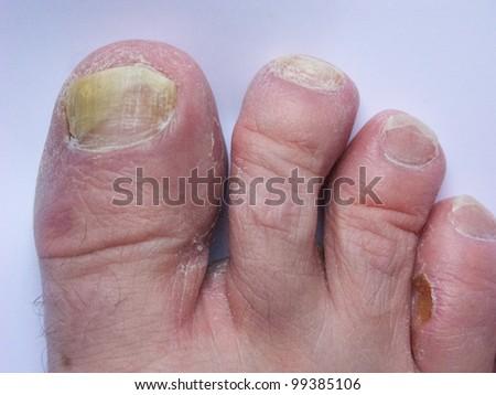 Athlete's foot - stock photo