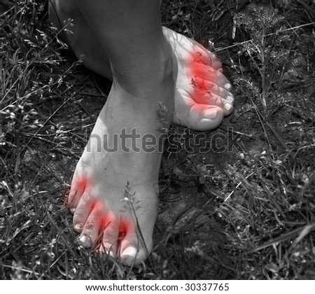 stock-photo-athlete-s-foot-feet-30337765.jpg