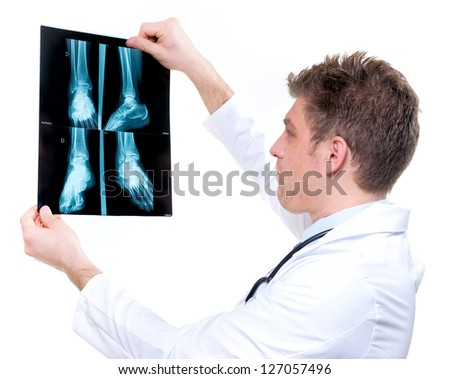 attractive and cheerful expressive doctor holding an foot x-ray - stock photo