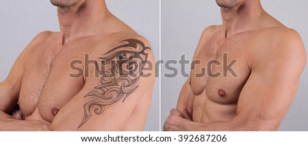Attractive Man before and after laser tattoo removal treatment - stock photo