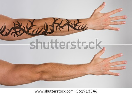 Cropped view image hands woman sitting stock photo for Tattoo removal healing