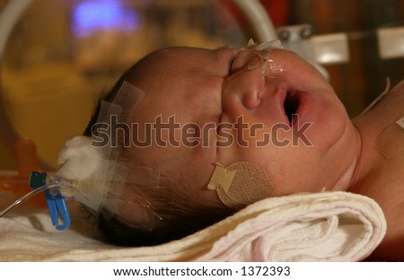 baby in trauma in ICU at hospital - stock photo