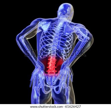 Back Pain, Backache - stock photo