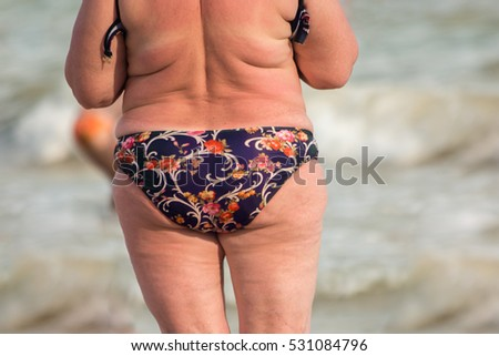 Back view of obese lady. Overweight woman outdoor. Increased risk of heart diseases. Excessive weight harms health.
