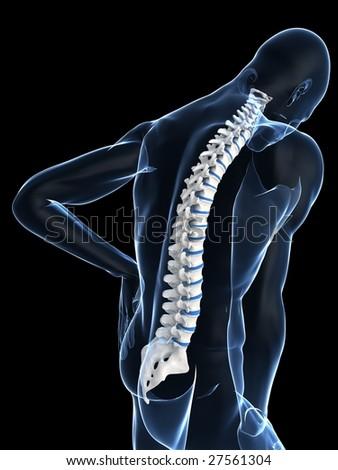 backache - stock photo
