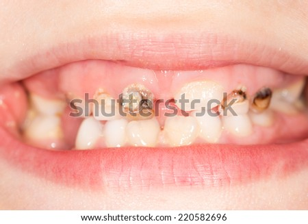 bad teeth in the mouth. close-up - stock photo