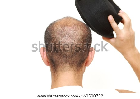 bald man with a hat - stock photo