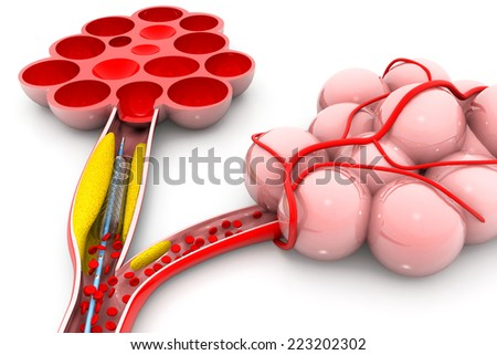 Balloon angioplasty with alveoli   - stock photo