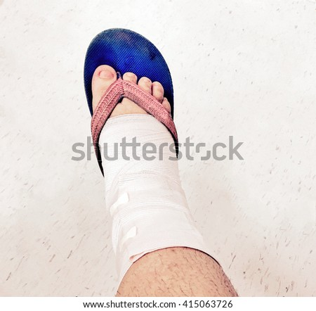 Bandage being applied for relief lasting foot pain and wearing a slipper for comfortable - stock photo
