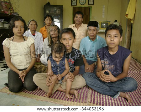 BANDUNG, INDONESIA - February 26, 2007: Dede Koswara ('The Treeman of Indonesia') who suffers from a mutation of HPV poses at home with his family on February 26, 2007 in Bandung, Java, Indonesia.