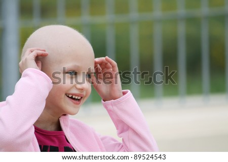 beautiful caucasian girl undergoing chemotherapy treatment for cancer in her kidney - stock photo