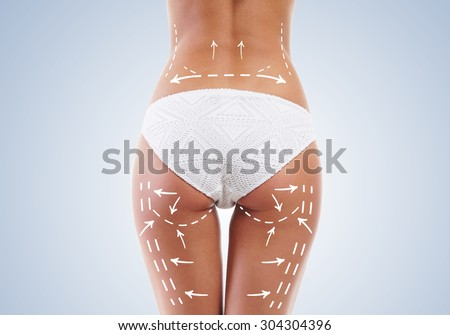 Beautiful legs with arrows on hips. Plastic surgery concept. - stock photo