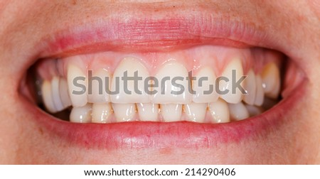 Beautiful smile and teeth from a young woman - stock photo
