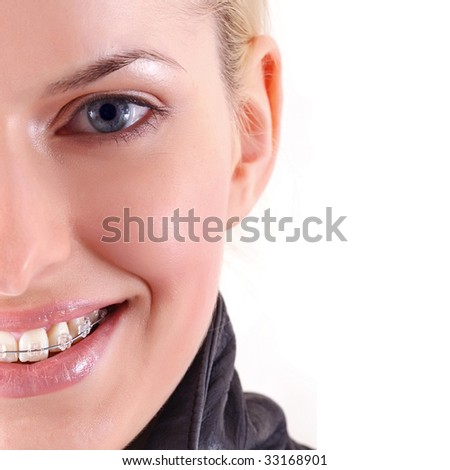 Beautiful young brunette with brackets on teeth in white close up, isolated on a white background, please see some of my other parts of a body images