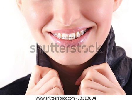 Beautiful young brunette with brackets on teeth in white close up, isolated on a white background, please see some of my other parts of a body image - stock photo