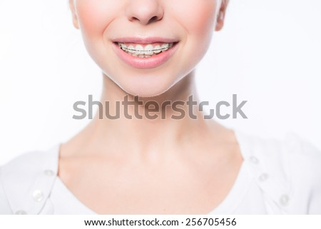 Beautiful young woman with teeth braces - stock photo