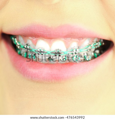 Beauty woman smile with ortodontic accessories. Orthodontics treatment.