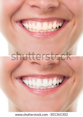 Before and after bleaching or whitening. Perfect woman mouth with teeth smile - stock photo