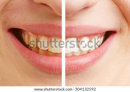 Before and after comparison of teeth whitening of a young woman - stock photo