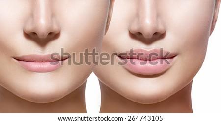 Girls clit surgery