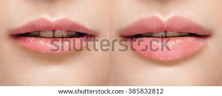 Before and after lip filler injections. Perfect Lips Woman Sexy Mouth open. Fillers. Lip augmentation Beauty young woman Lips. Close up over white background - stock photo
