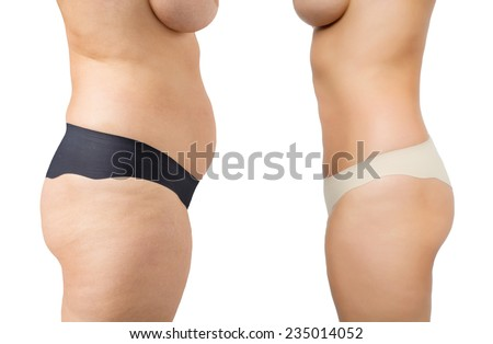 Before and after weight loss - stock photo