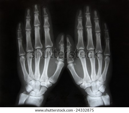 black and white photo of x-ray picture  of human hands - stock photo