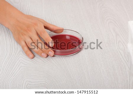 blood in petri dishes, blood test - stock photo